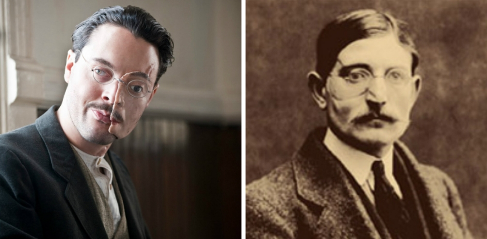 Links: Richard Harrow, Rechts: voorbeeld gezichtsprothese WOI veteraan. (bron: HBO en Anna Coleman Ladd papers, Archives of American Art, Smithsonian Institution.)